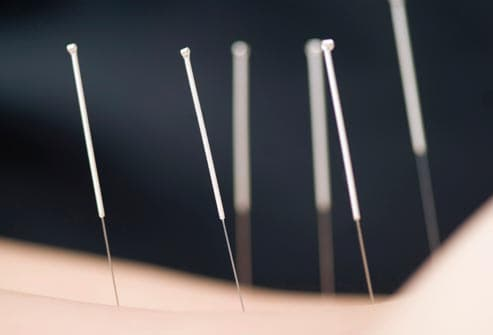 acupuncture needles in lower back