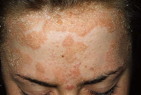 slideshow pictures of plaque psoriasis pustular psoriasis and other types of psoriasis