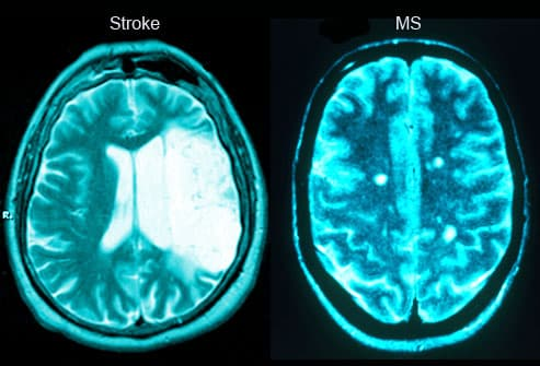 Stroke And MS Brain Scans