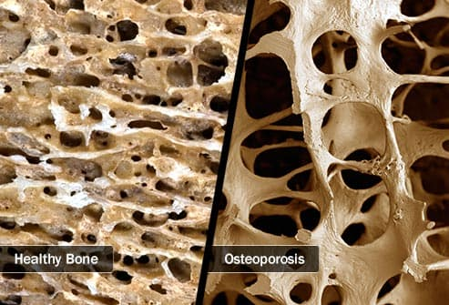 osteoporosis diptych
