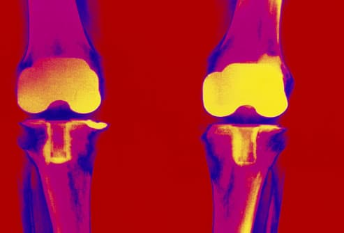 Colored X-ray showing replacement  of knee joints