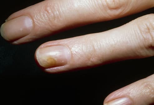 Fingernail Fungus Sometimes Though There Is No Reason Or Cause For The Infection Other Than Bad Luck They Are Mon And Anyone Can Get Them