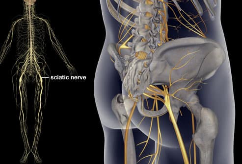 Illustration showing sciatica location