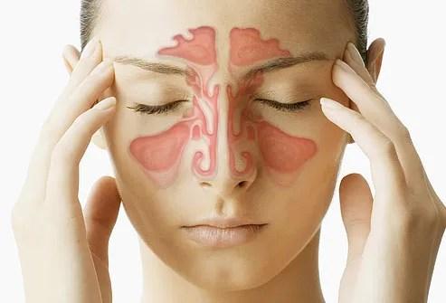 Резултат слика за Sinusitis