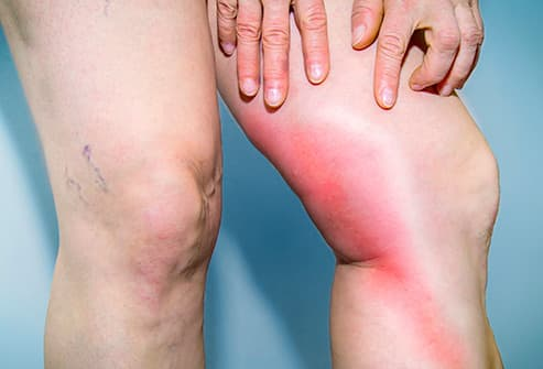 leg with redness and inflamation