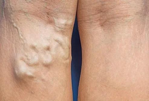 varicose vein in leg