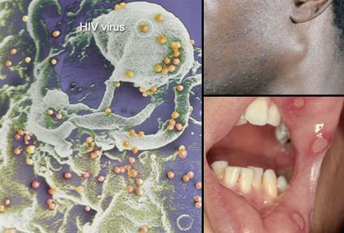 Does Herpes, Warts And Other Such Things Mean HIV Infection? 1