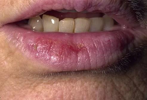 Actinic Cheilitis Farmer S Lip