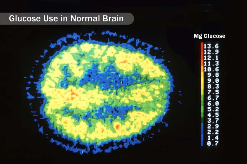 glucose use in normal brain