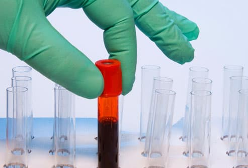 Hand Removing Blood Sample
