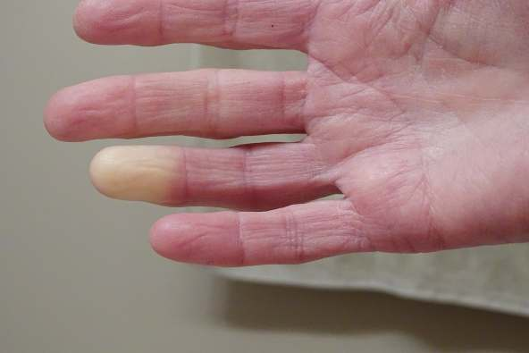 photo of finger with discoloration
