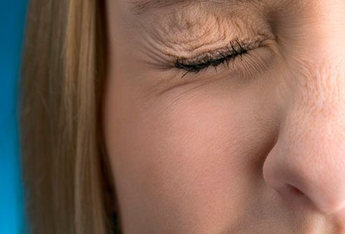 woman with twitching eye