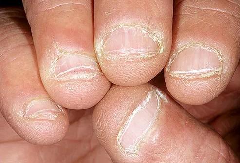Bitten fingernails