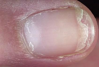 dermnet photo of split fingernail