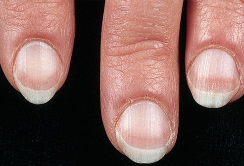 Pale fingernail beds on woman's hand