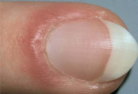 mh photo of red puffy nail fold