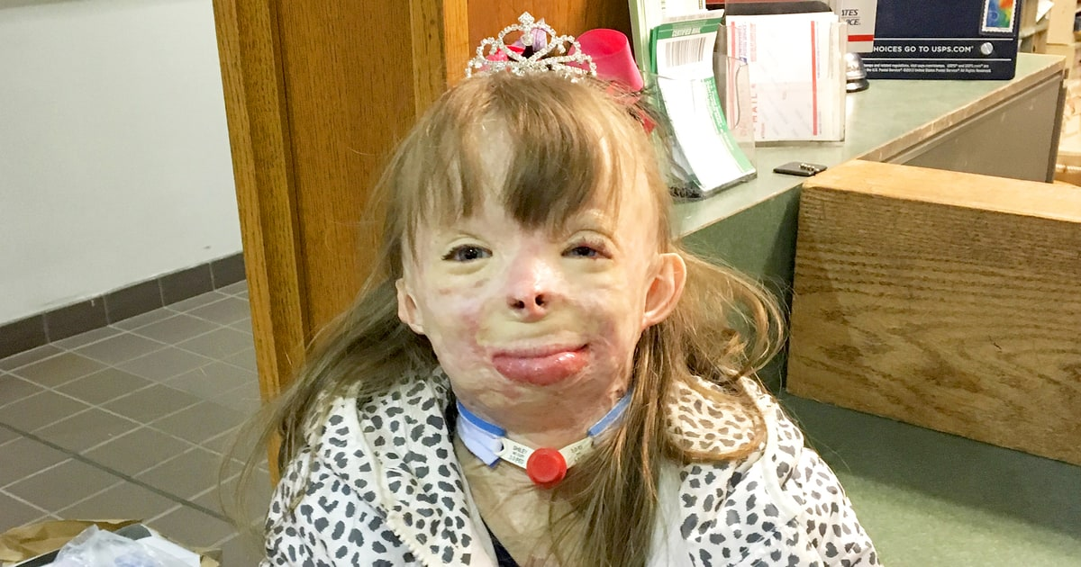 8 Year Old Burn Victim Who Lost Family In Fire Receives