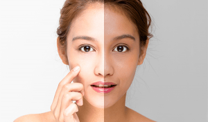 How to glow face naturally at home, Skin Whitening Naturally