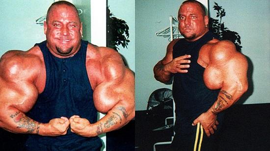 تكوين العضلات