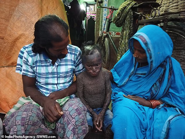 With his parents who cannot cure him