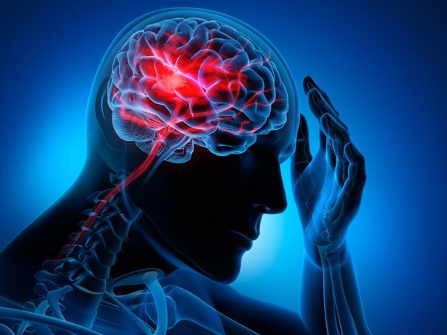 Stroke-stroke-Cerebro-Vascular-Accident