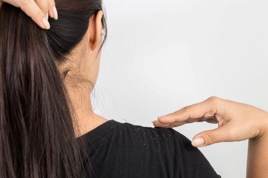 وصفات  لعلاج قشرة الشعر