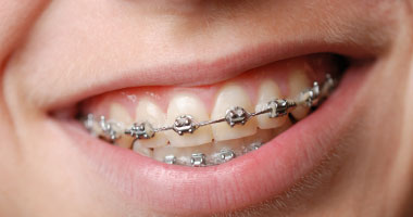 بروفيسور بريطانى: التقويم يسبب أضرارا باللثة وتراكم البلاك على الأسنان