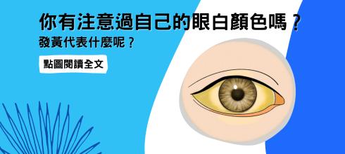 你有注意過自己的眼白顏色嗎?發黃代表什麼呢?-台灣養生網