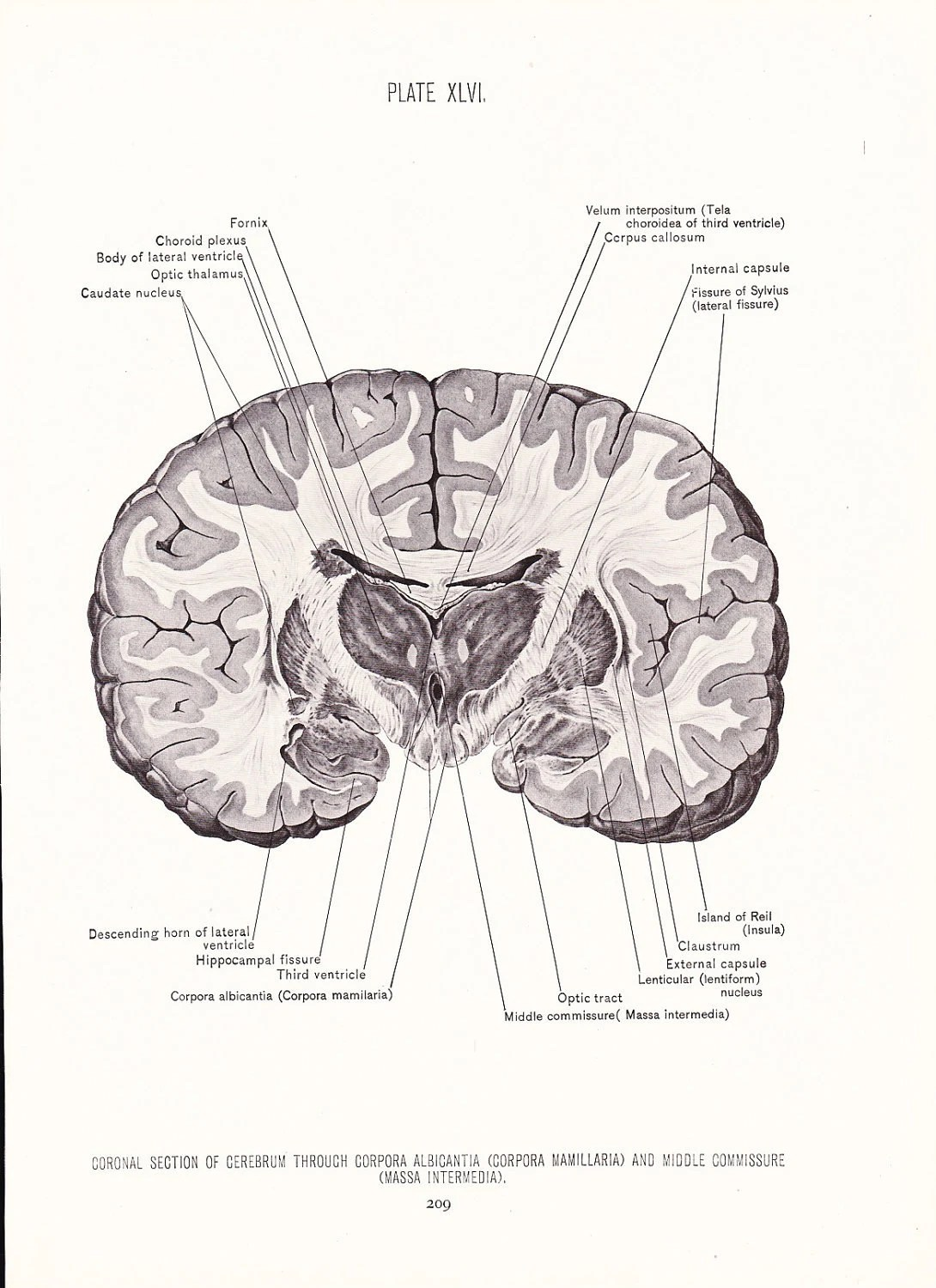 Human Anatomy Print Coronal Section Cerebrum Brain