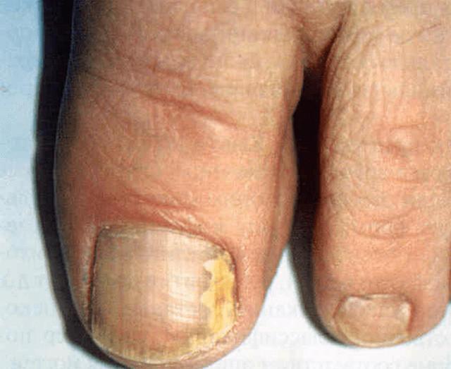 Onichomikozės pradinis