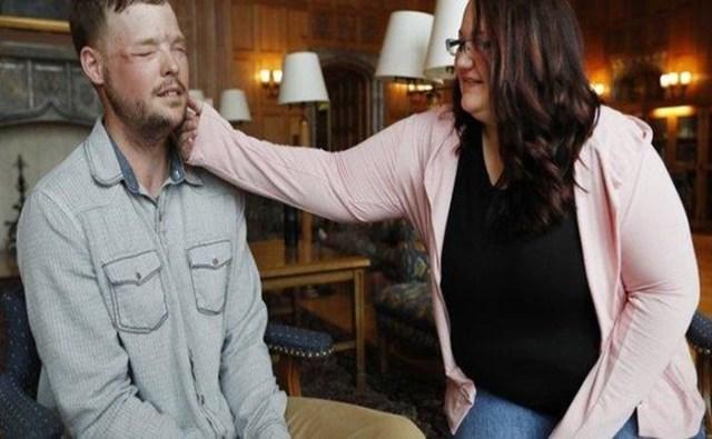 Вдова самоубийцы прикоснулась к пересаженному лицу незнакомца и расплакалась