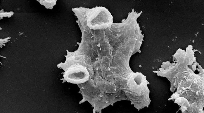 Жуткая амёба паразит, которая питается мозгом человека