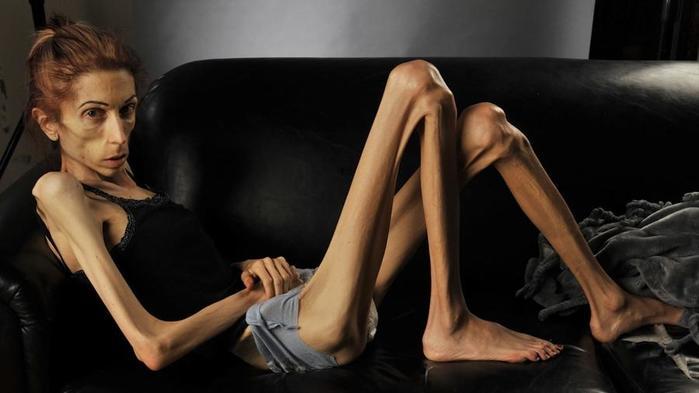 Интересные и полезные факты об анорексии