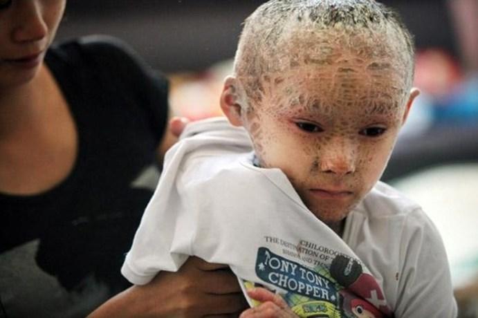 Поразительные истории детей, на долю которых выпали шокирующие испытания
