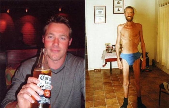 Люди, которые выжили, несмотря ни на что: 10 историй на грани смерти