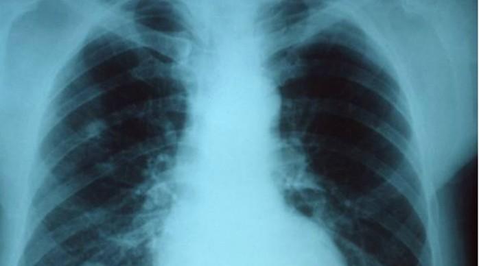 Почему люди до сих пор умирают от гриппа: 4 основные причины