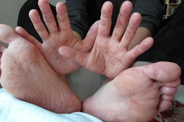 Вирус Коксаки: симптомы и последствия
