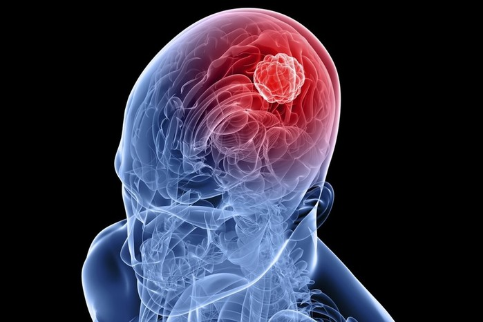 Факты о злокачественной опухоли