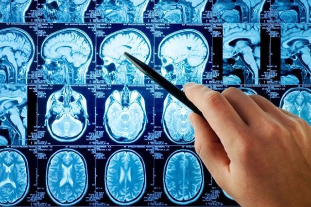 Восстановление после инсульта мозга: питание и упражнения