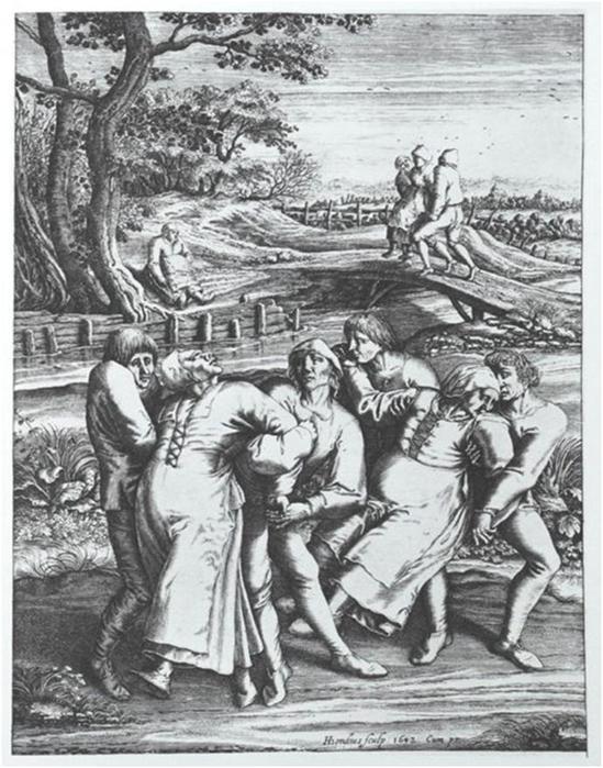 Безумная пляска святого Вита— танцевальная лихорадка хореомания в Средневековье