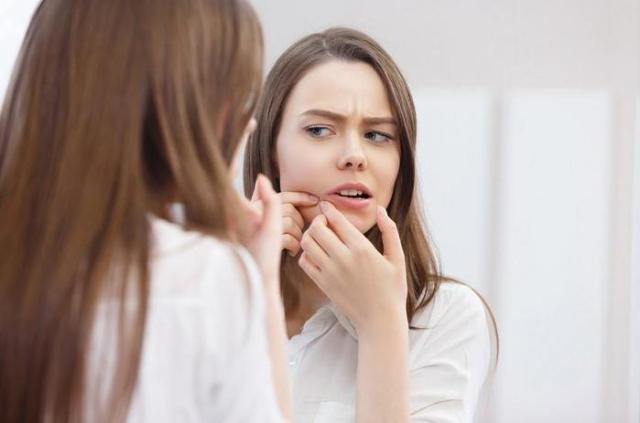 7 вредных привычек, которые приводят к появлению акне