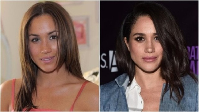 Как изменились знаменитости, которые очень заботились о своей внешности