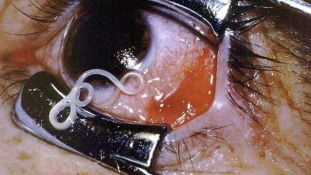 5 самых страшных паразитов, которые могут жить в теле человека