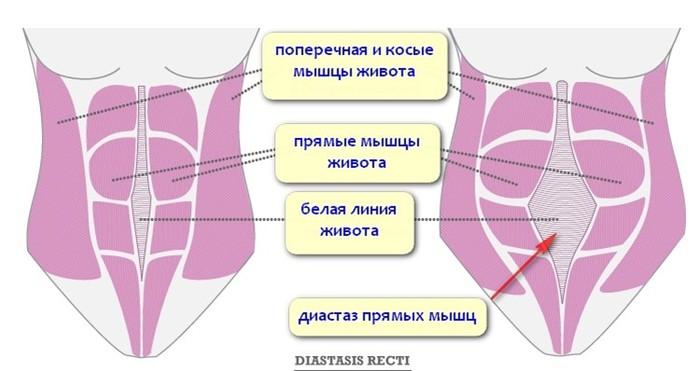 5 упражнений, чтобы убрать живот после родов