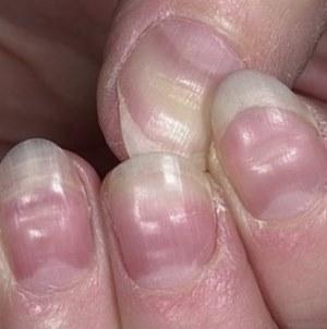 vågiga naglar orsak