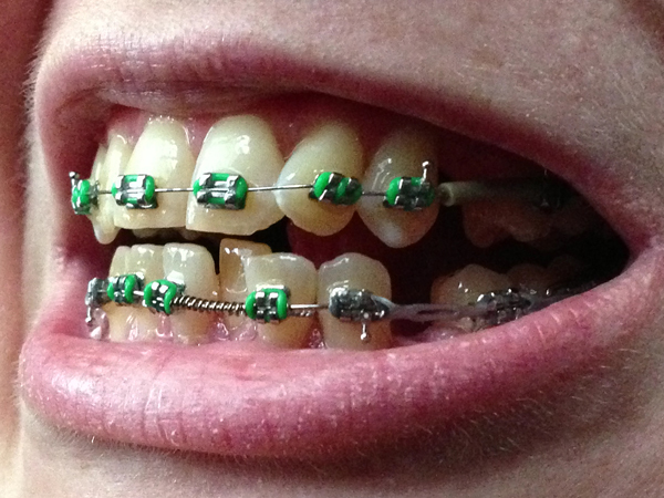 12 Problems Only People Who Had Braces Will Understand The Daily