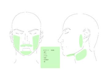 メンズ脱毛について~後編~_20180402_1