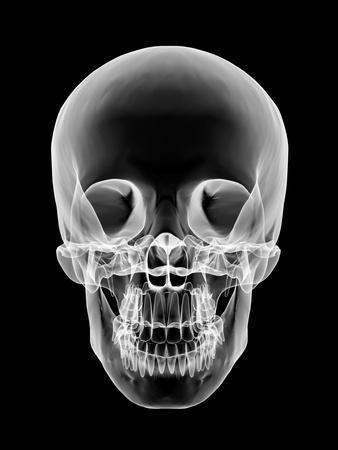 Human Skull X Ray Artwork Photographic Print Pasieka Art Com