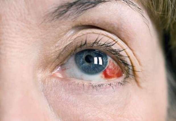 Image result for eye diseases