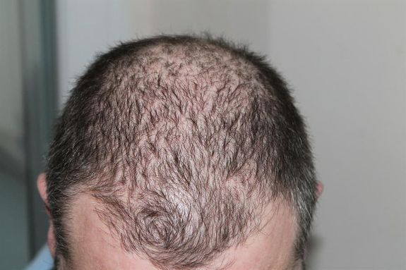 Causes The causes of baldness are attributed to an increase in male hormones, genetic genes for baldness, and diseases such as alopecia and malaria, and